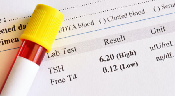 Thyroid Disease