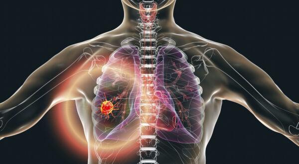 Lung Cancer Stigma