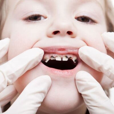 Teeth and the Struggle for Oral Equality