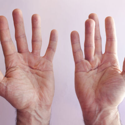 Dupuytren Disease and Disabled Hands