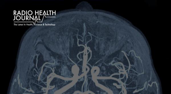 Brain Aneurysm Through the Eyes of a Survivor